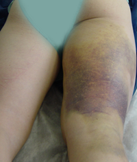 hematoma thigh hamstring tendon rupture