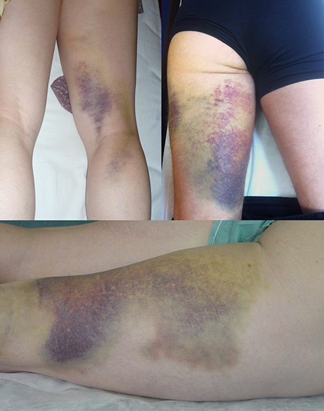 thigh hematoma following rupture of tendons hamstring thigh contusion blue