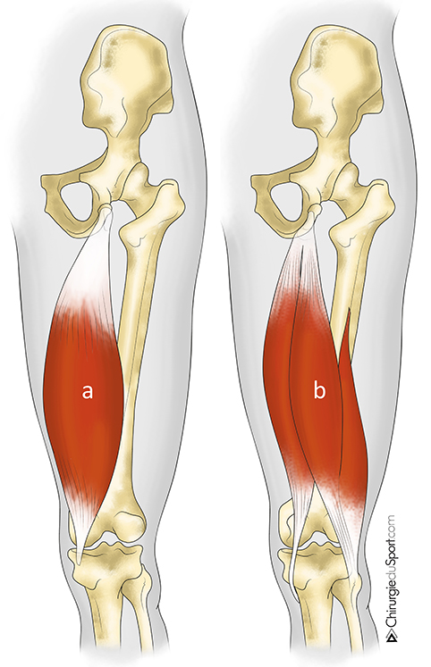 Fig 1 the hamstring muscle group tibialis a) semi membranous muscle b) semitendinosus muscle and biceps Dr. Lefevre Nicolas yoann burly